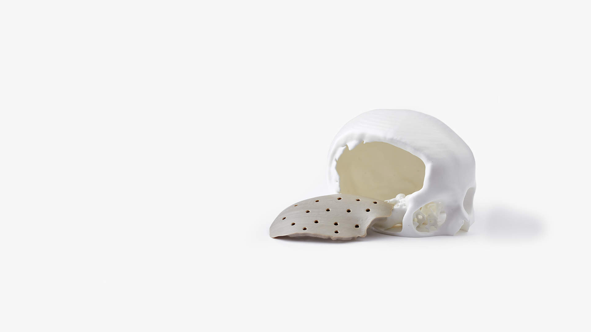 Open defect to the right side of a skull with fitting 3D-printed PEEK implant next to it